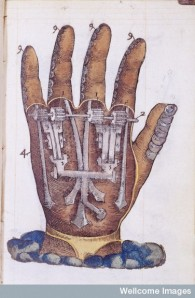 Ambroise Pare: Artificial Hand